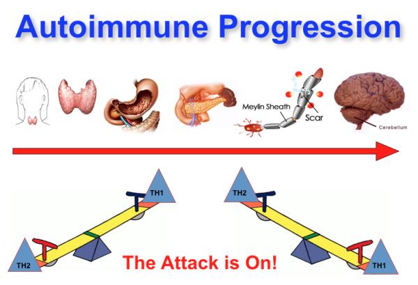 Ursache von Allergien und Autoimmunerkrankung wie MS
